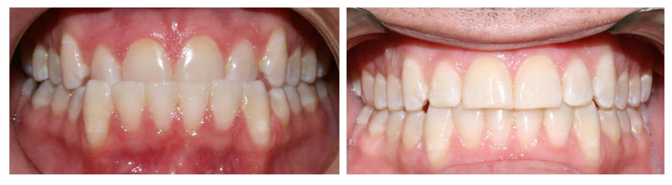 before and after hd ortho 8