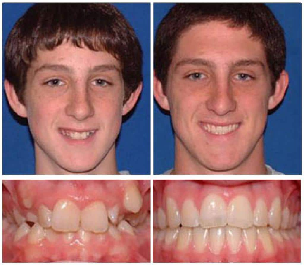 before and after hd ortho boy 1