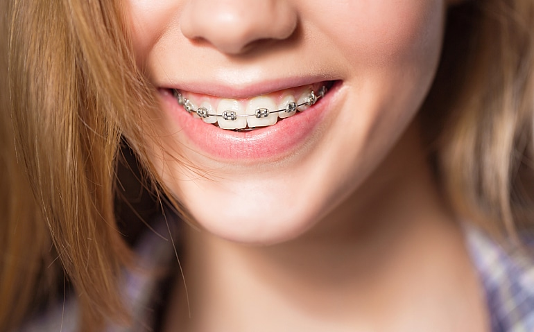 Traditional braces on girl