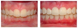 before and after hd ortho 1